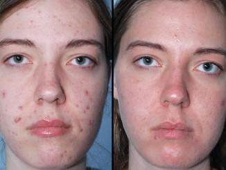 tipos-de-tratamentos-caseiros-para-acne